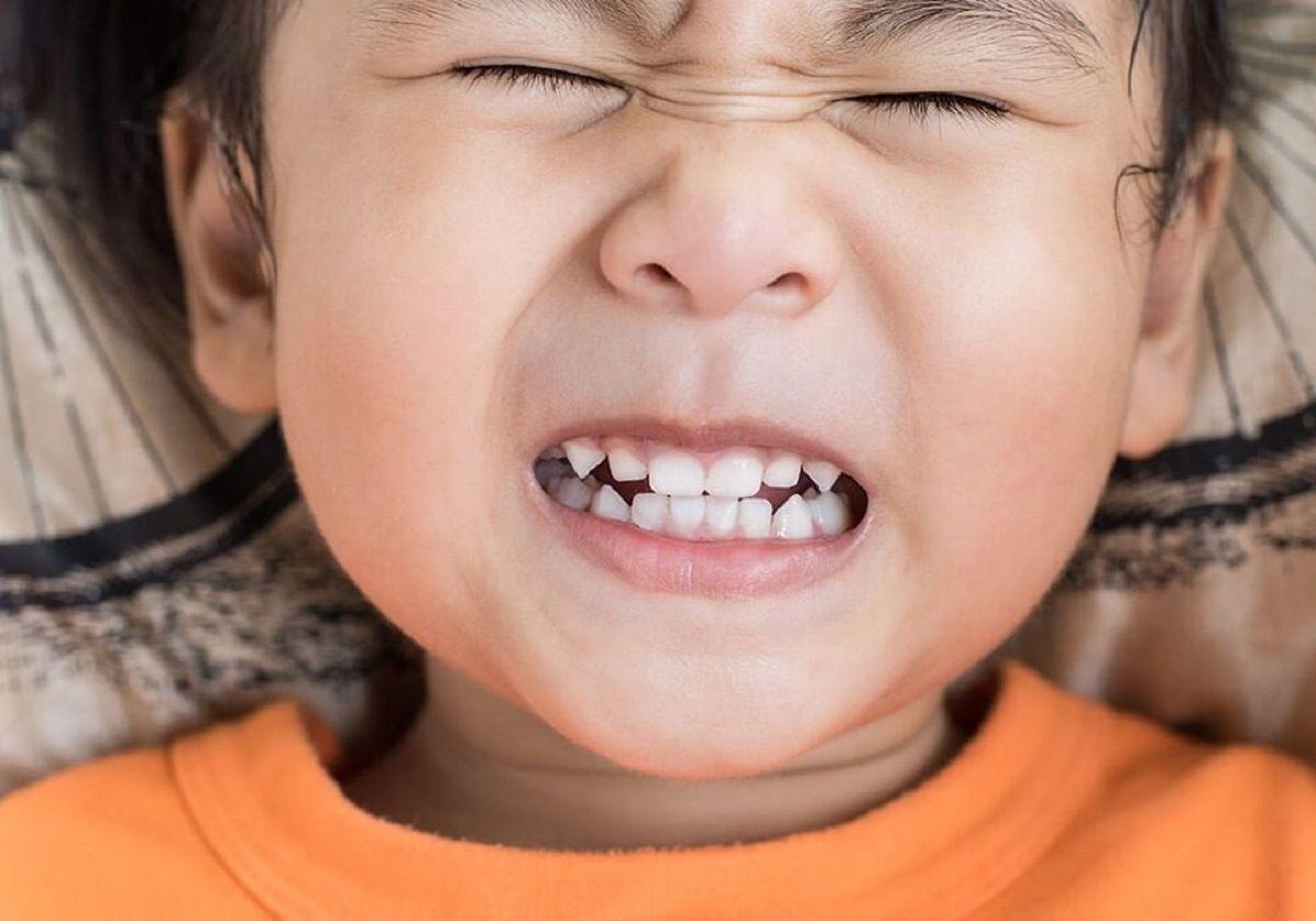 دندان-قروچه-کودکان-و-درمان-آن