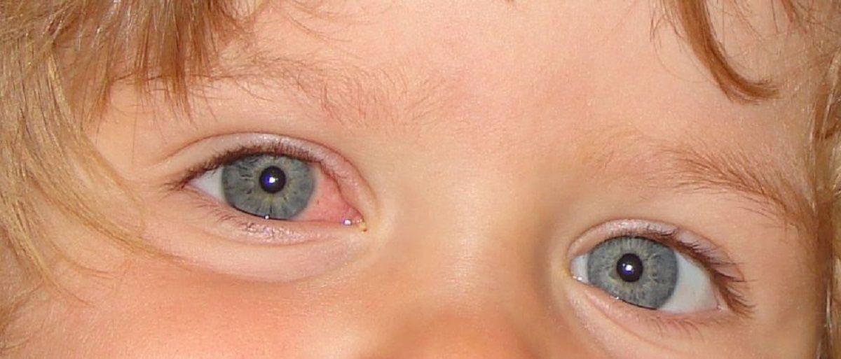 همه-چیز-درباره-قی-کردن-چشم-نوزاد