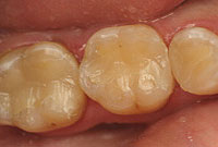 علت تغیر رنگ دندانها