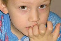علل ناخن جویدن در کودکان