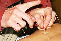 تاثیر طب سوزنی در آرتروز زانو