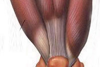 آسیبهای عضله چهار سر ران ( Quadriceps injury )