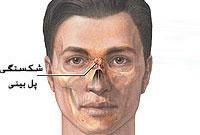 آسیب و شکستگي بينی ( Nasal fracture )