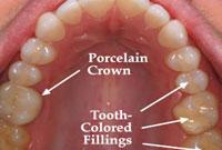 بررسی سرامیک های مورد استفاده در صنایع دندانسازی (1)