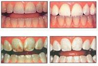 بررسی سرامیک های مورد استفاده در دندانسازی(2)