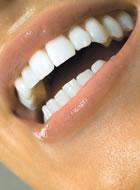 عاج و تغيير رنگهاى دندان