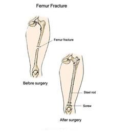 شکستگي هاي استخوان ران ( Femoral fracture ) در ورزشکاران