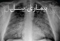 بیماری سل