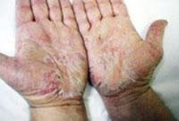 بيماريهاي قارچي پوست