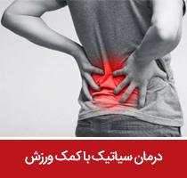 درمان سیاتیک با کمک ورزش