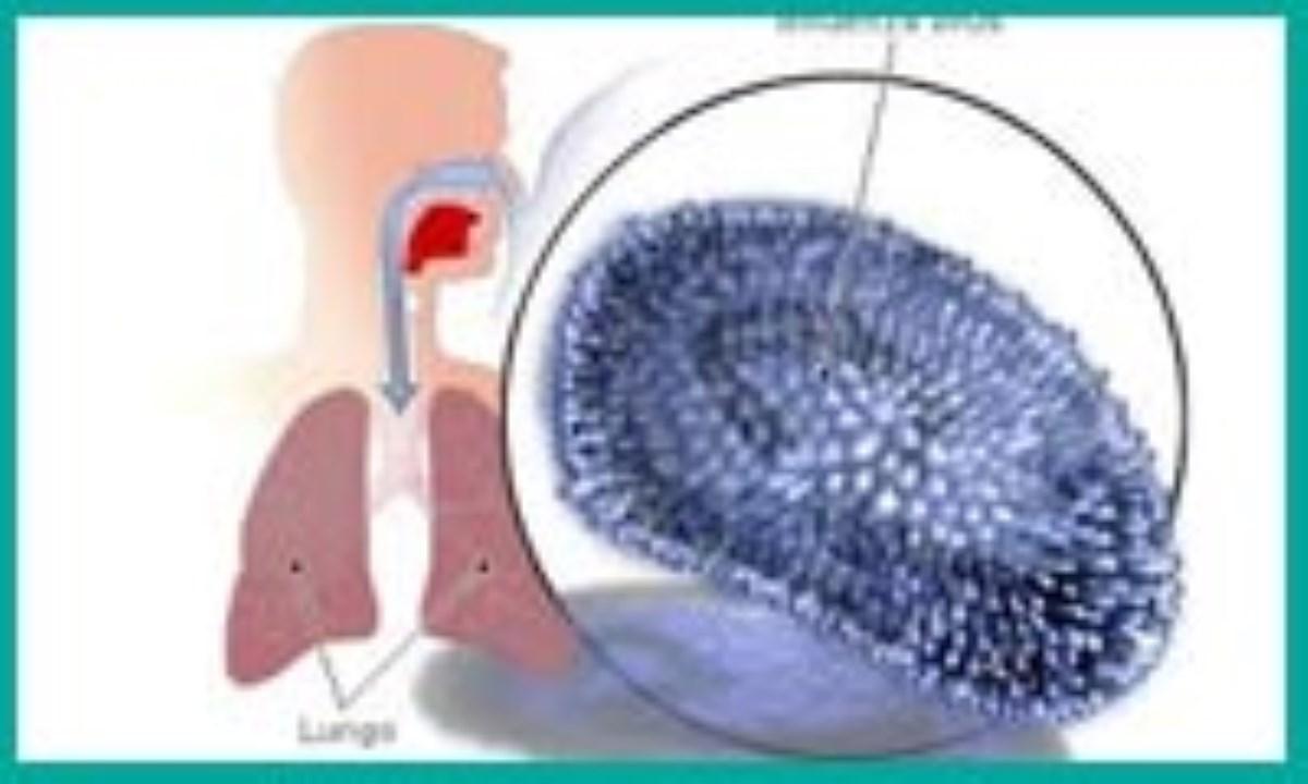 آخرین اطلاعات دربارهی آنفلوانزای مرگبار