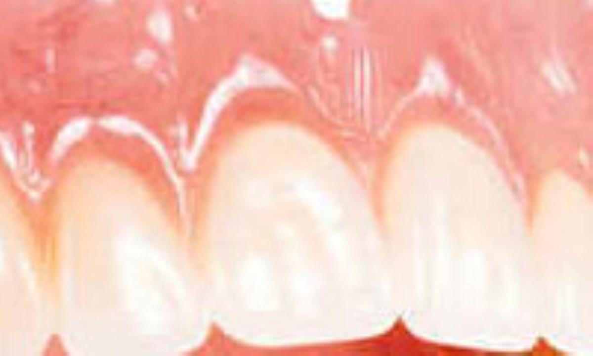 دندان هاي سالم با پودر جادويي!