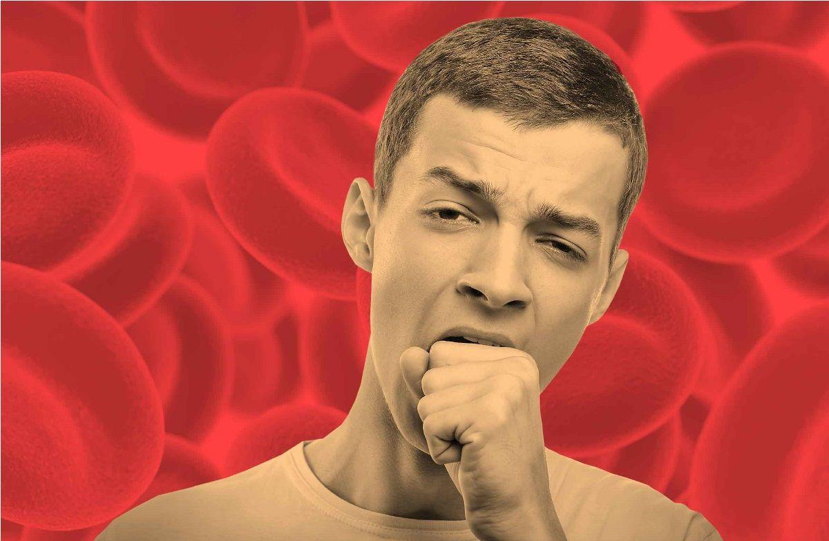 بیماری فاویسم