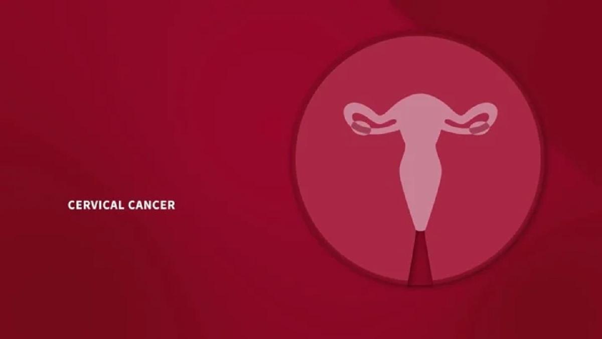 نشانه ها و علائم هشدار دهنده سرطان دهانه رحم