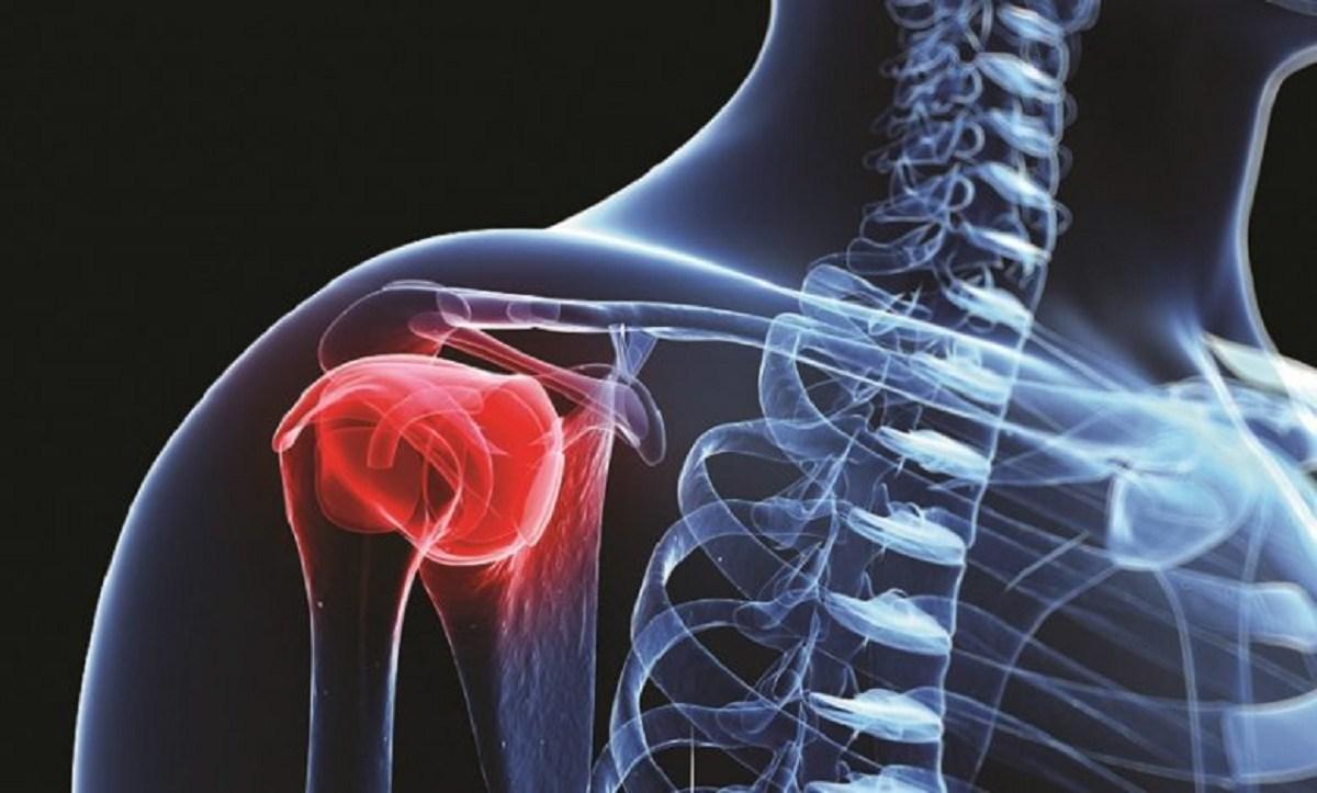 هر آنچه باید درباره سرطان استخوان و انواع، نشانهها، تشخیص و درمان آن بدانیم