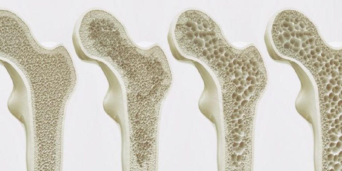 علائم پوکی استخوان و روشهای مبارزه با آن