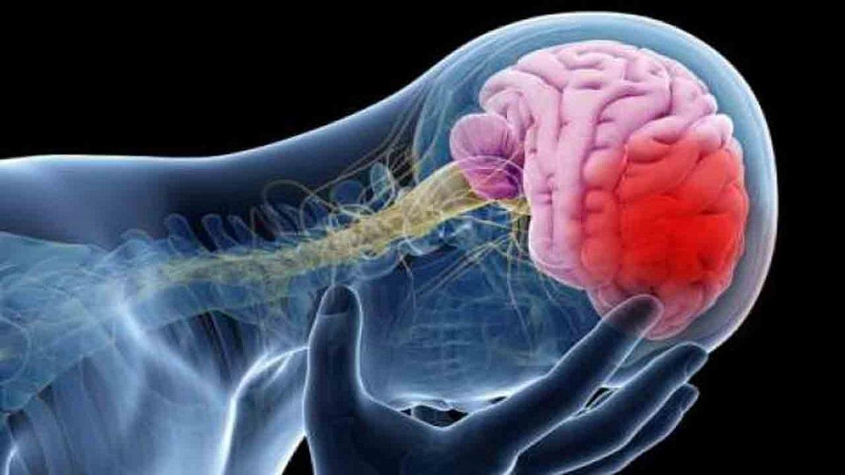 سکته مغزی و راهکارهای پیشگیری از آن