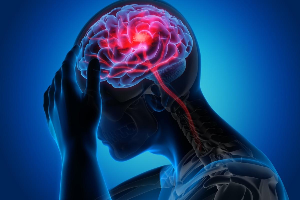 آشنایی با انواع سکته مغزی و درمان آن