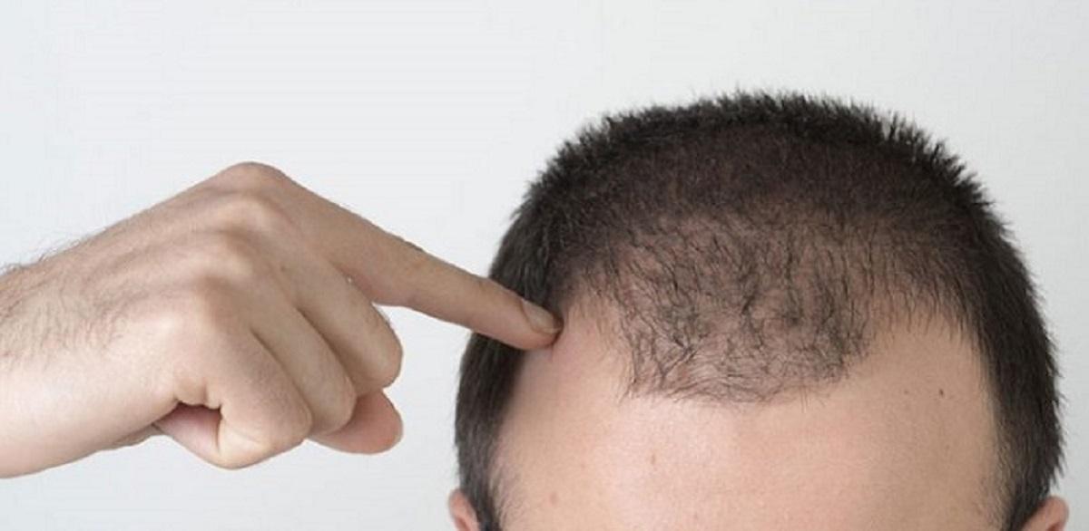 ریزش مو در مردان جوان به چه علت می باشد؟