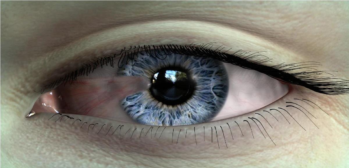درمان بیماری ناخنک چشم