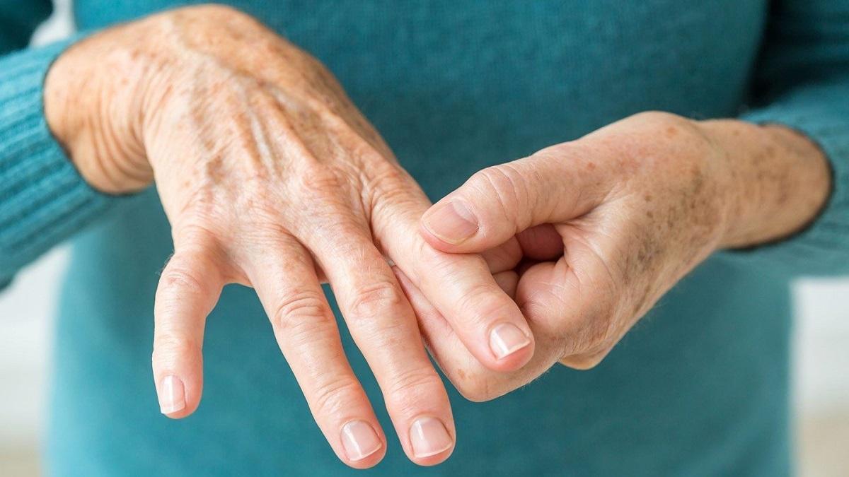 تشخیص و درمان روماتیسم مفصلی