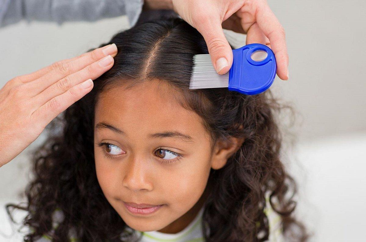 راه های ابتلا به شپش موی سر و درمان سریع و قطعی آن