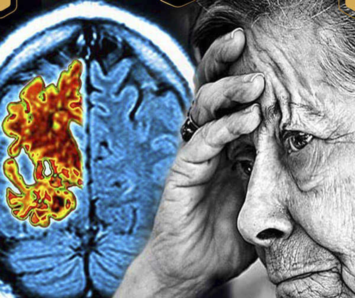 علت و علائم بیماری آلزایمر و روشهای درمان دارویی