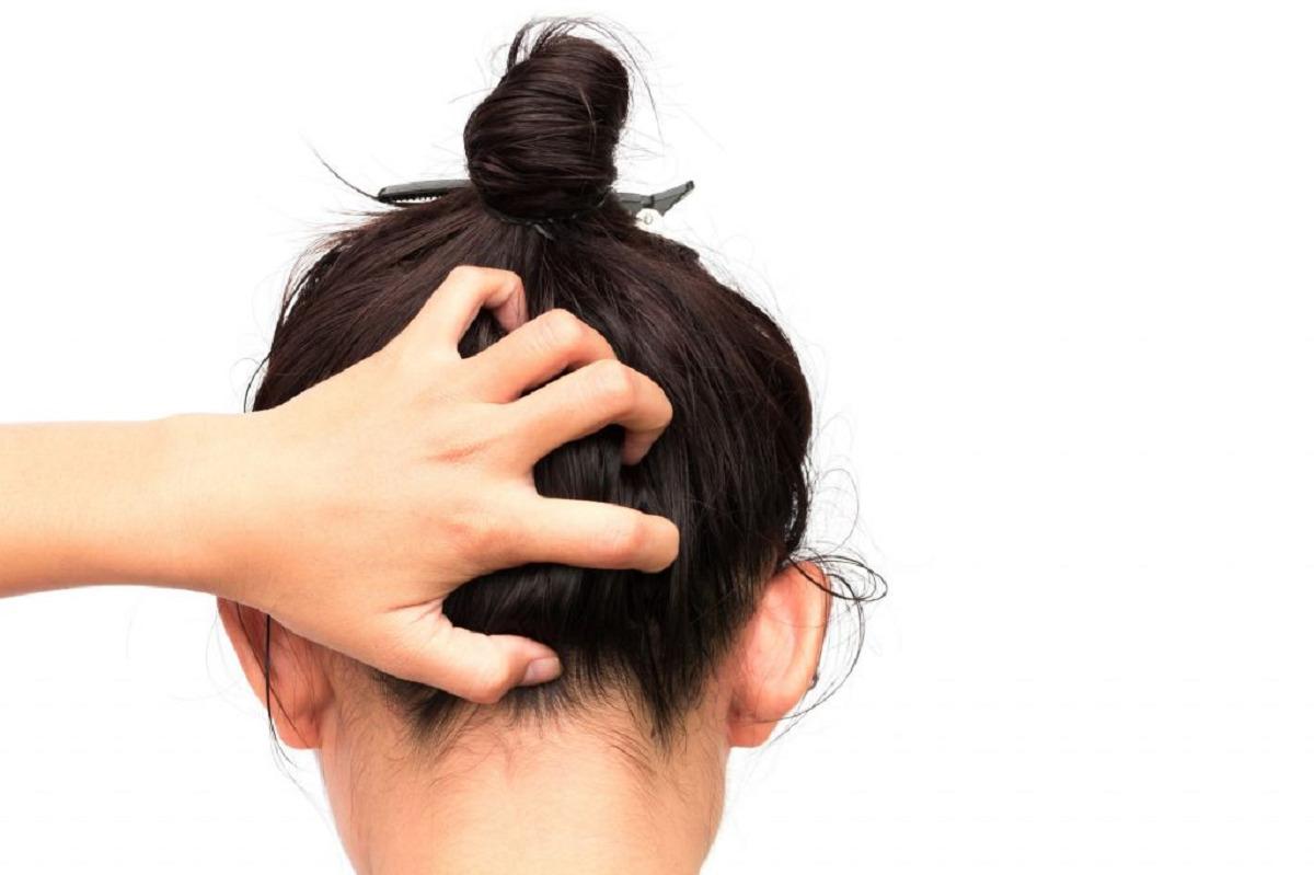 دلایل خارش پوست سر و راههای درمان آن