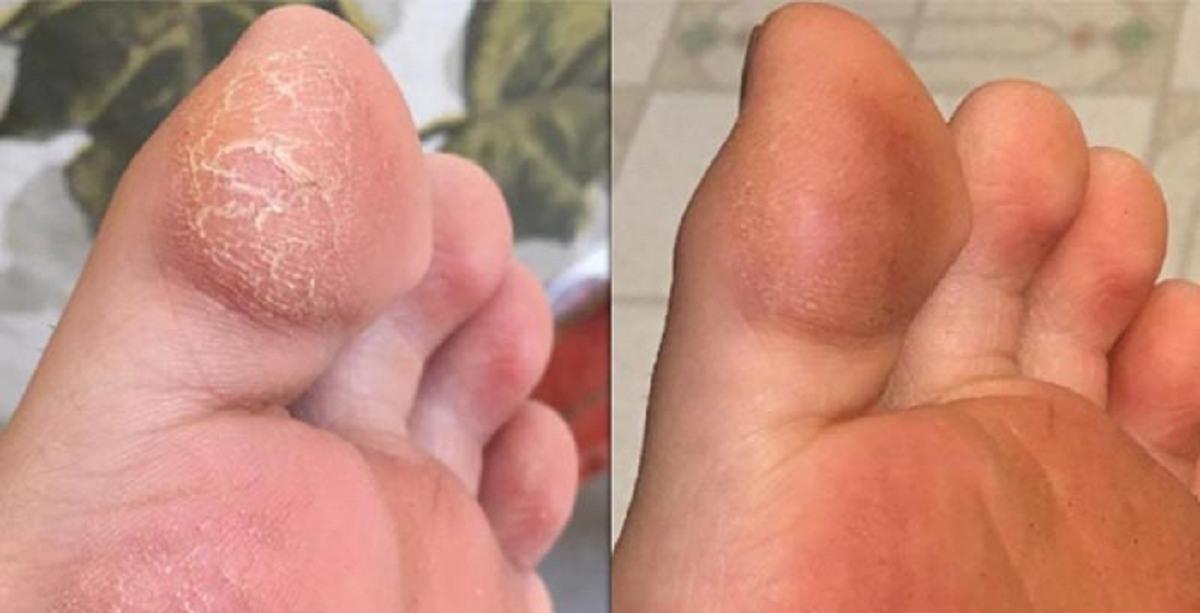 روشهای معجزه آسای درمان ترک دست و پا