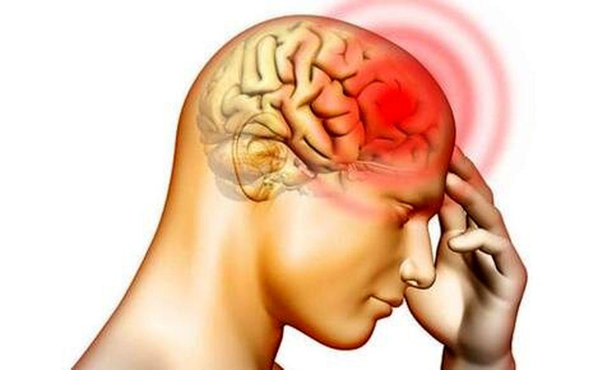 همه جیز راجع به آنوریسم مغزی