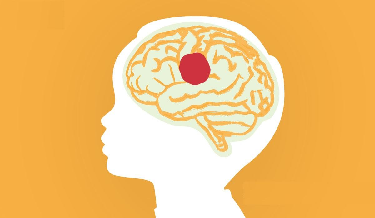 عارضه تومور مغزی در نوزادان