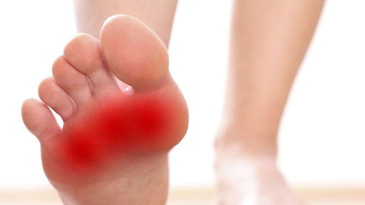 از علت تا درمان درد کف پا