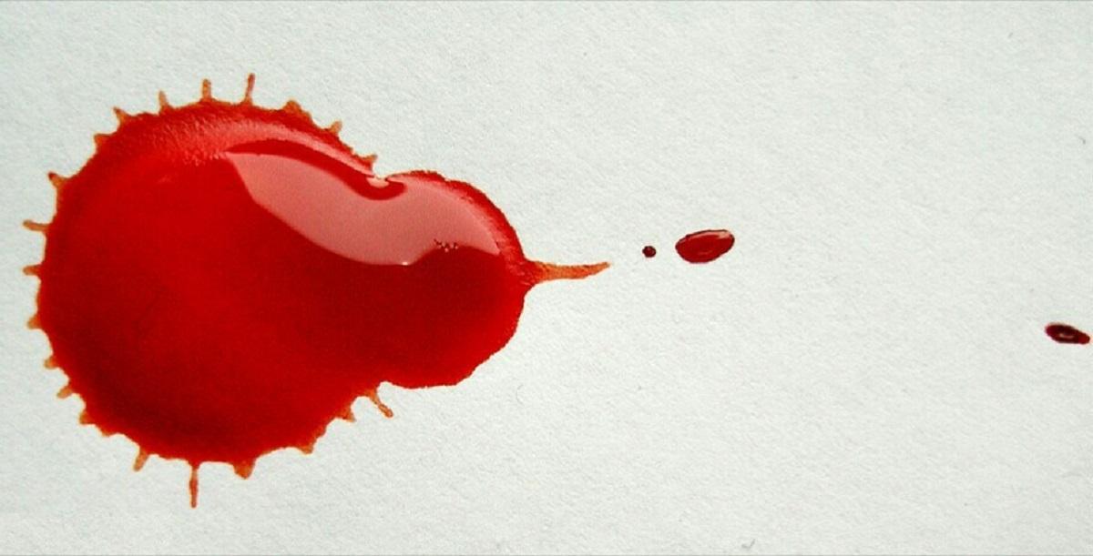خونریزی در دوران بارداری و علل و درمان آن