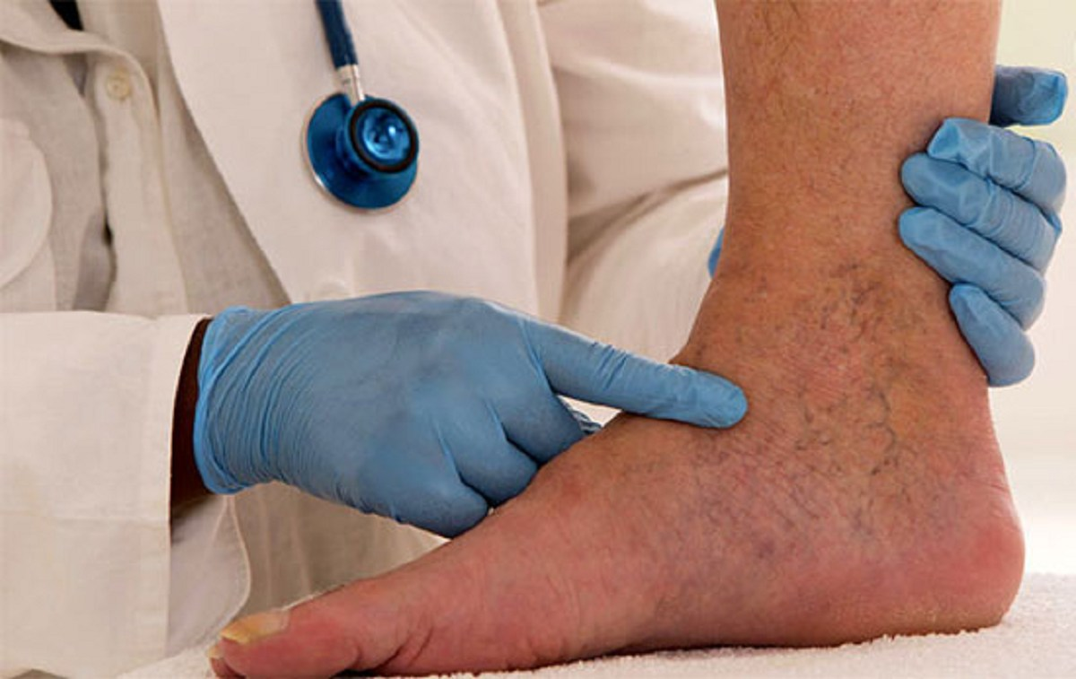 انواع واریس و موثر ترین روش های درمان آن
