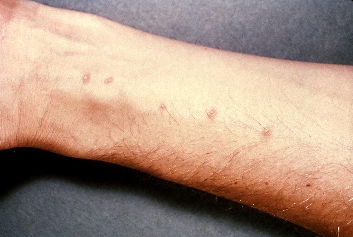 راجع به بیماری تب حلزون چه میدانید؟