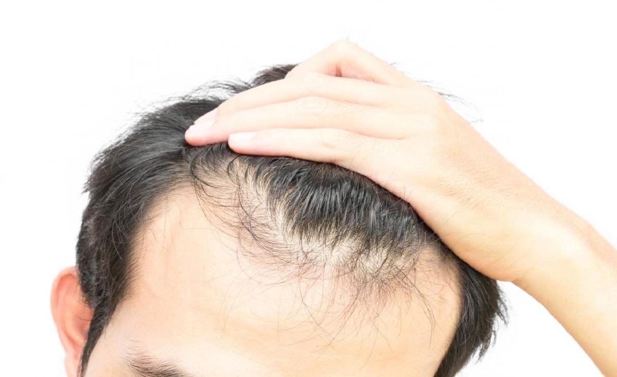علل ریزش مو و درمان گیاهی آن