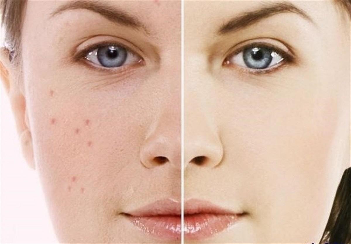 روشهایی برای برداشتن ضایعات پوستی