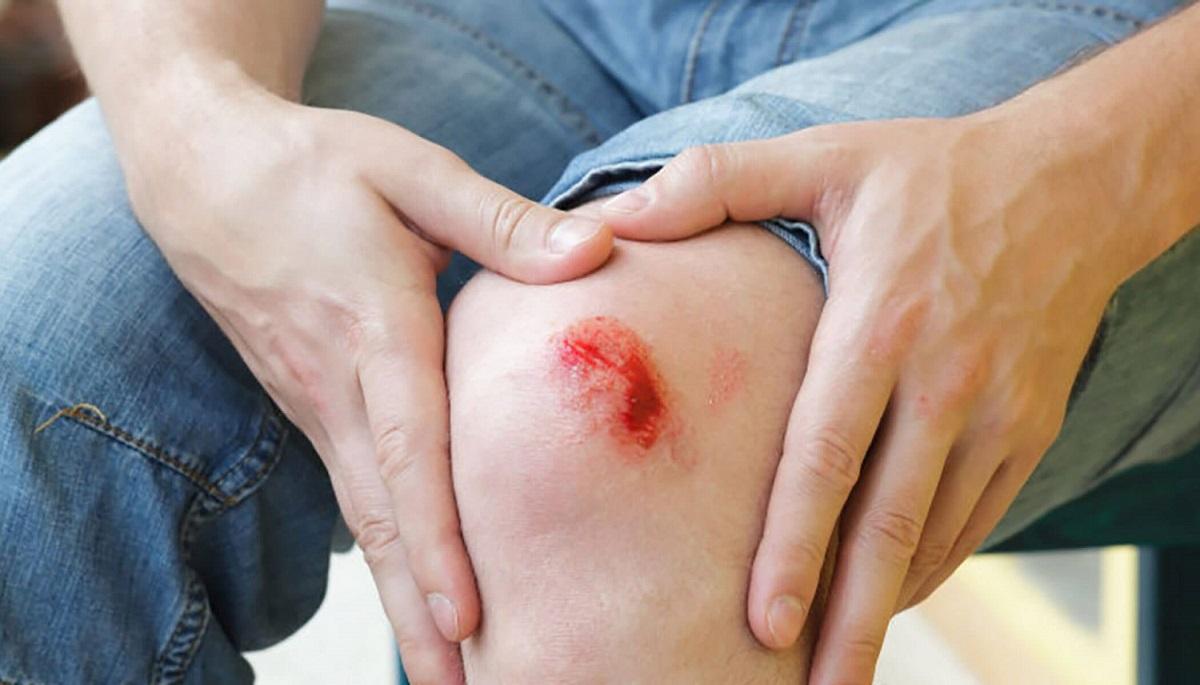 زخم باز چیست و چگونه درمان میشود؟
