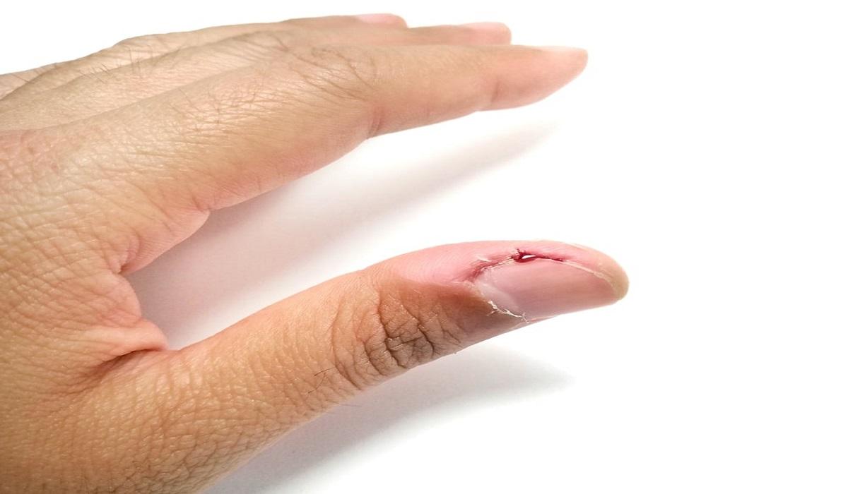 از علت تا درمان بیماری کندن پوست یا درماتیلومانیا