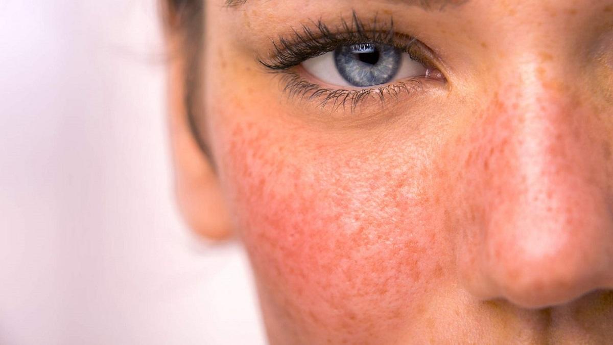 از علت تا درمان قرمزی پوست صورت