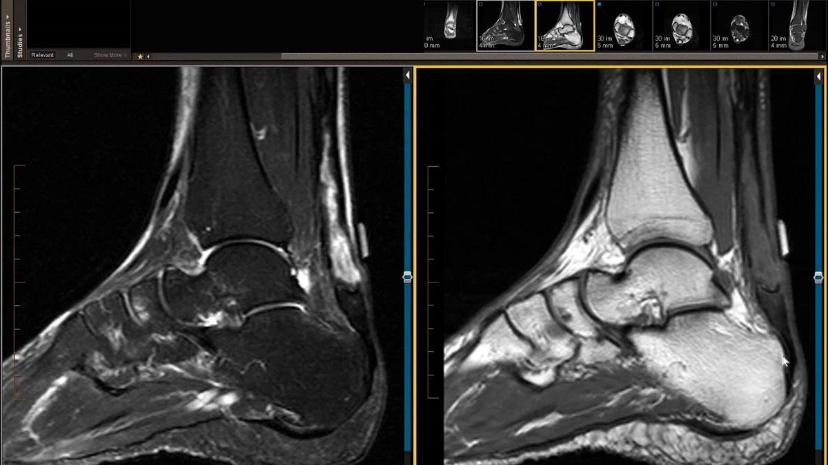درد پا – علائم، چه چیزی را نشان میدهد