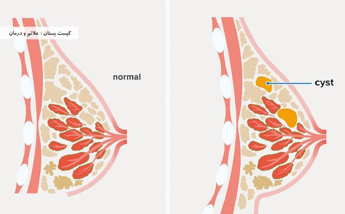 علایم و درمان کیست پستان