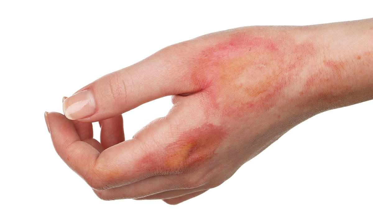سوختگی و درمان آن