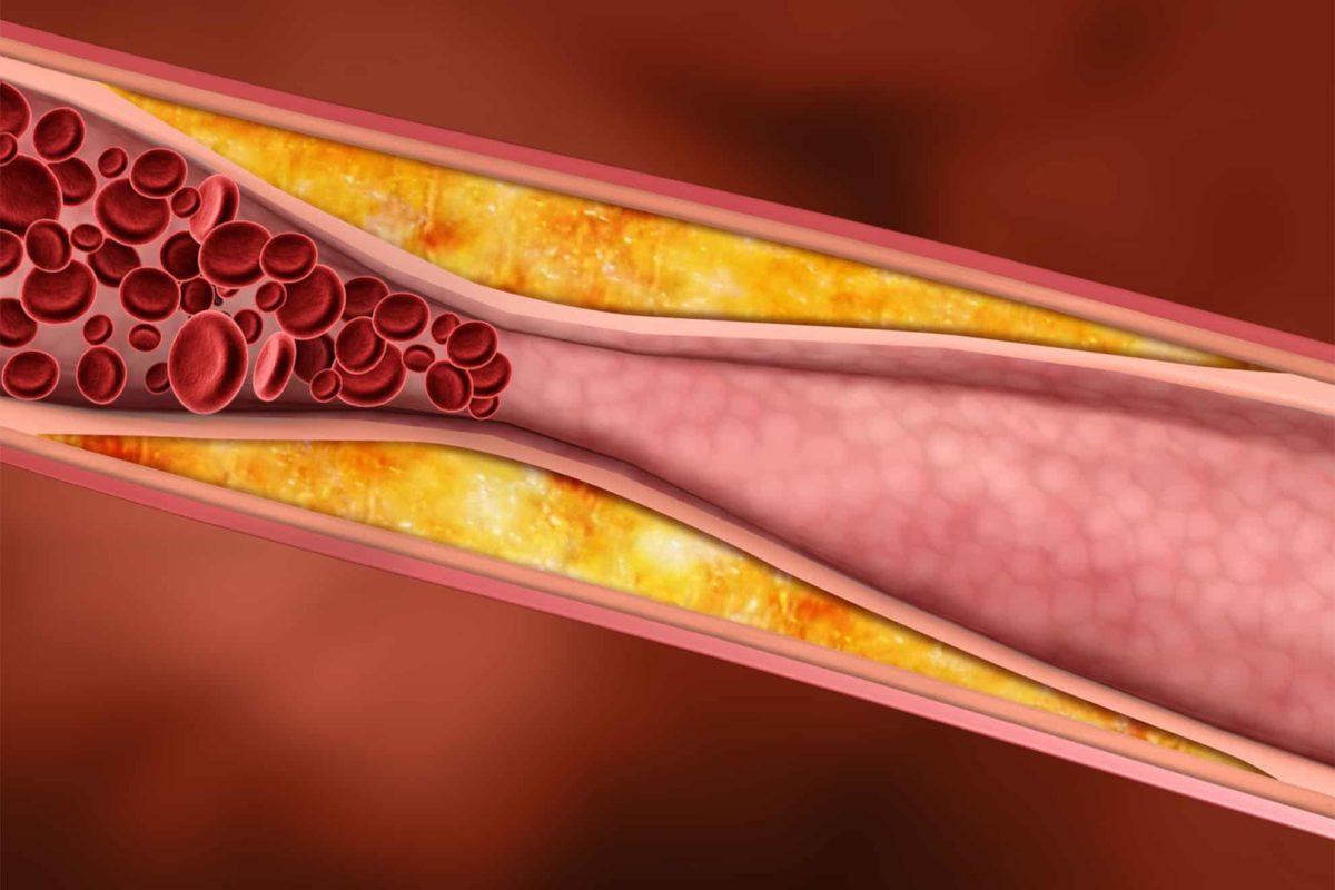 چند نکته طلایی برای تنظیم چربی خون