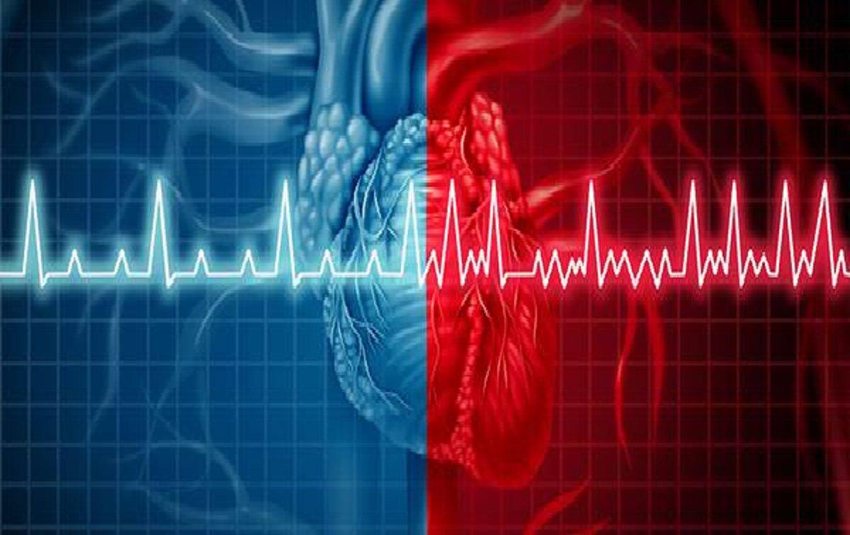 تپش قلب نامنظم یا آریتمی و علت،علائم و درمان آن