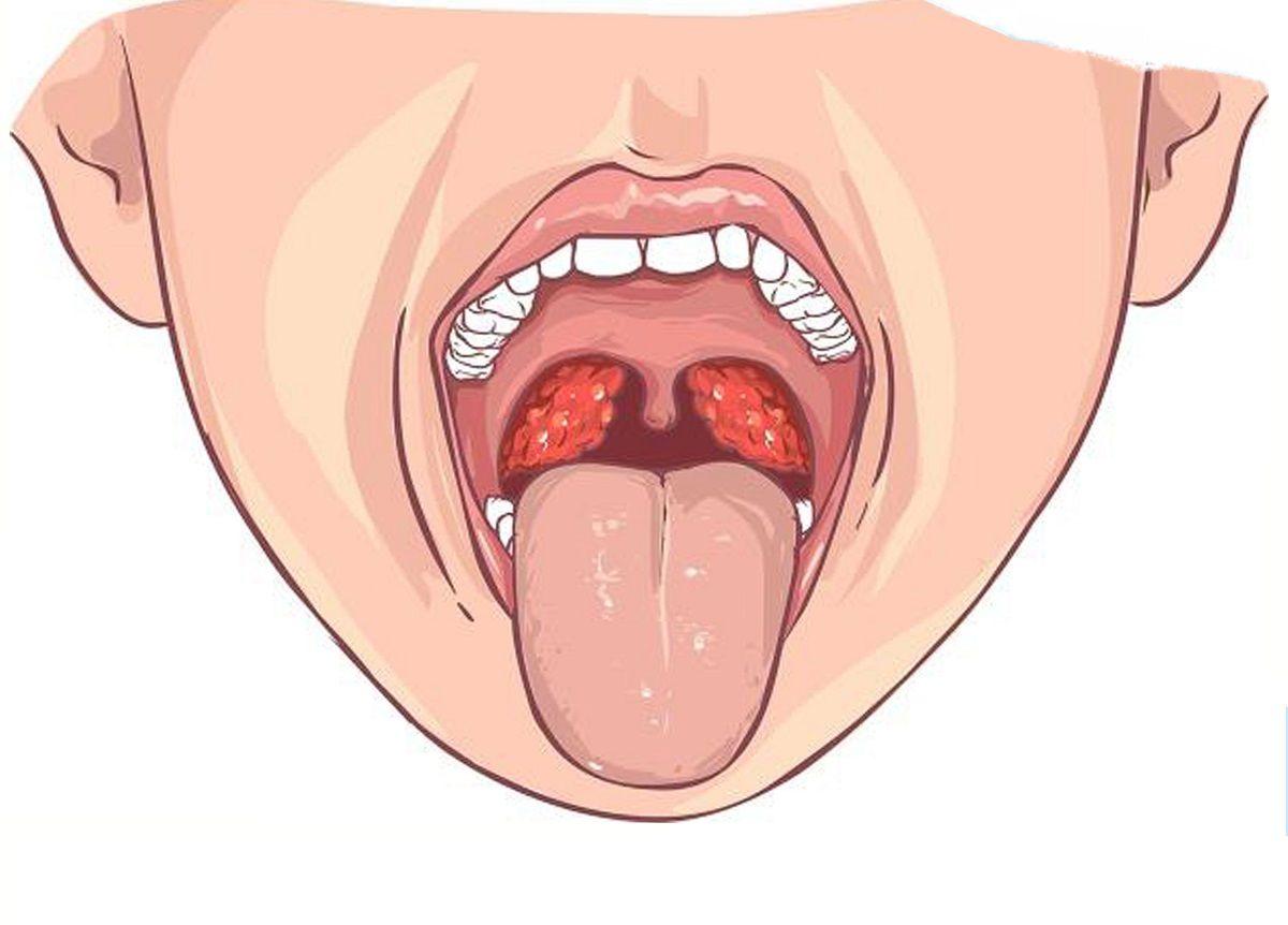 از علت تا درمان سرطان دهان