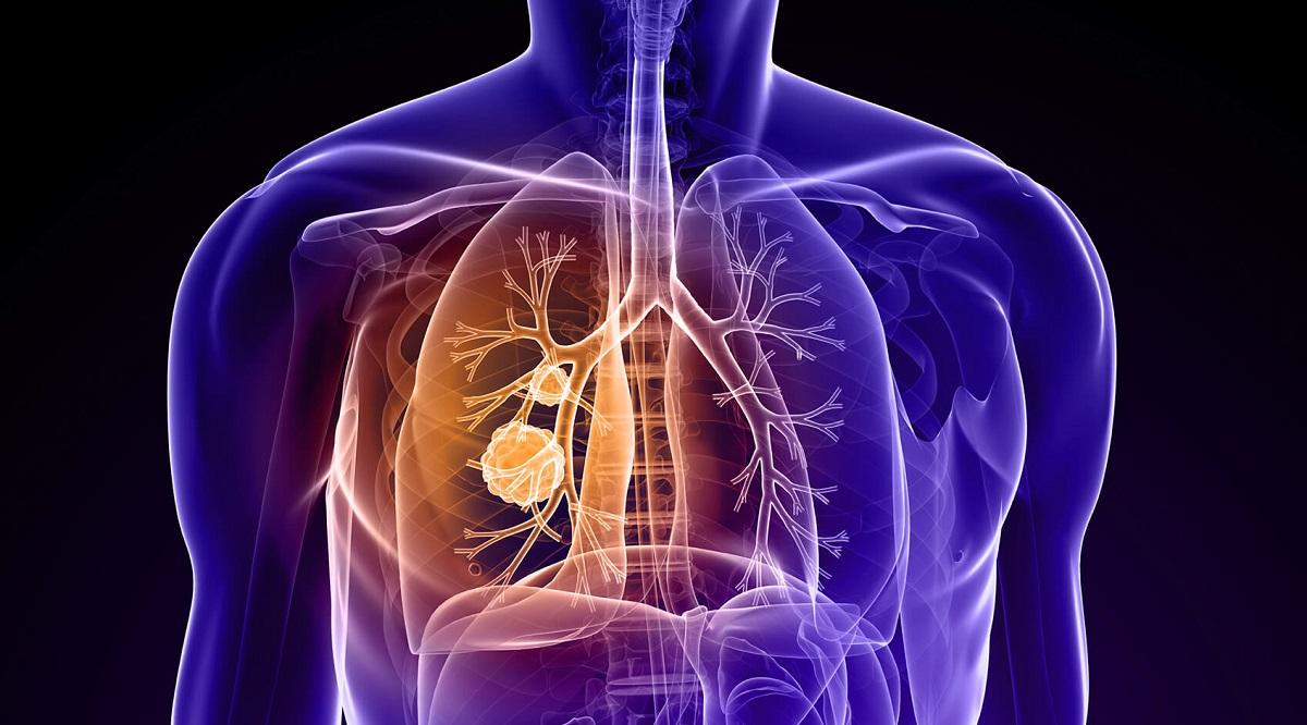 بیماری التهابی ریه حساس چیست و چگونه درمان میشود؟