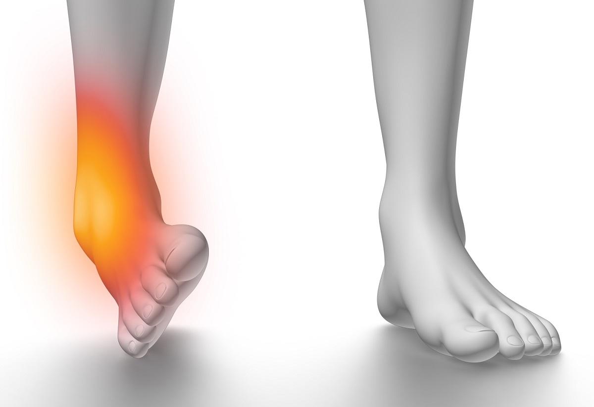 از علت تا درمان دررفتگی مچ پا