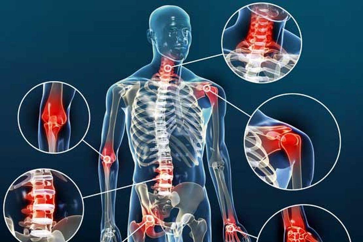 بیماری آرتروز چیست و چگونه درمان میشود؟