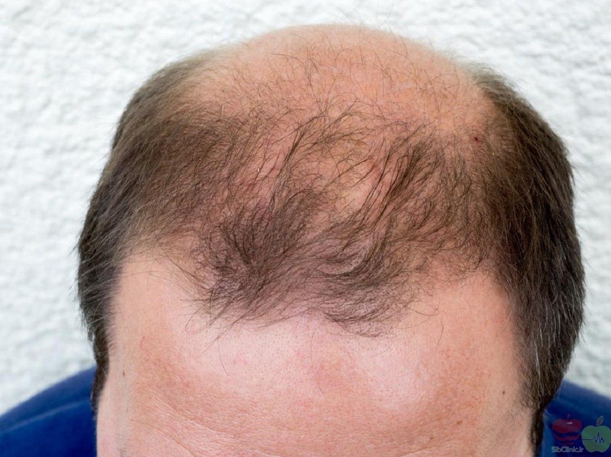 چند راه مؤثر موجود در آشپزخانه برای تقویت مو